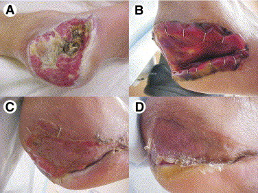 Dermal Regeneration Template in the Surgical Management of