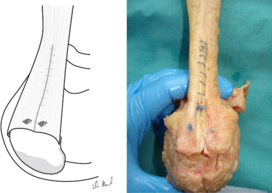 biomechanics achilles tendinopathy essay Hastad k, larsson l, lindholm a clearance of radiosodium after local deposit in the achilles tendon acta chir scand 1959 116:251-255 [medline] 8 carr a, norris s the blood supply of the calcaneal tendon j bone joint surg br 1989 71-b:100-101 9 root ml, orien wp, weed jh clinical biomechanics: normal and.