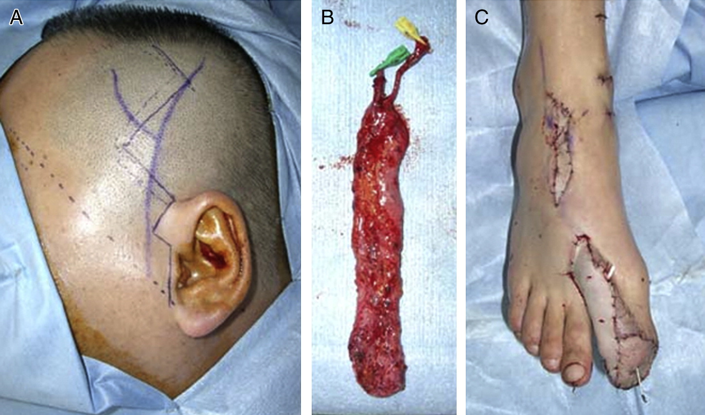 a hybrid therapy for buerger u0026 39 s disease using distal bypass and a free temporoparietal fascial