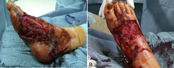 Vacuum Assisted Closure In The Management Of Degloving
