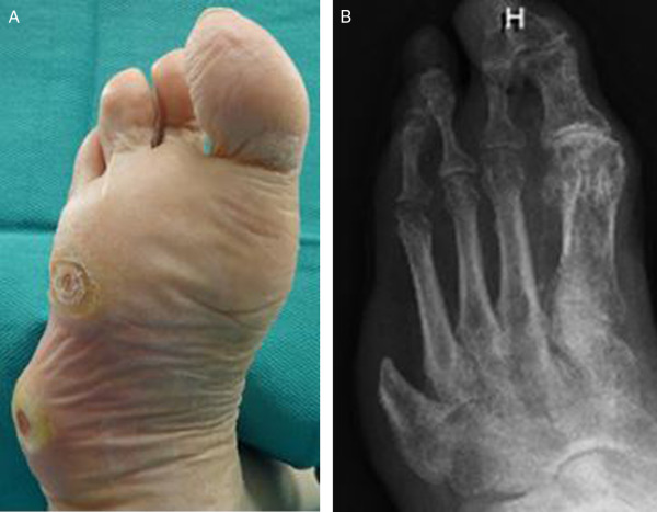 Complete Fifth Ray Amputation With Peroneal Tendon