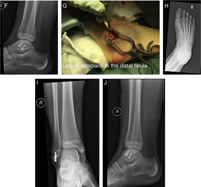 Atypical Chronic Ankle Instability In A Pediatric