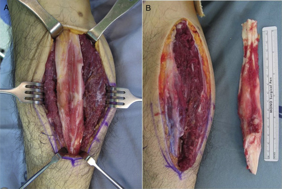 Concomitant Contracture Of The Knee And Ankle Joint After