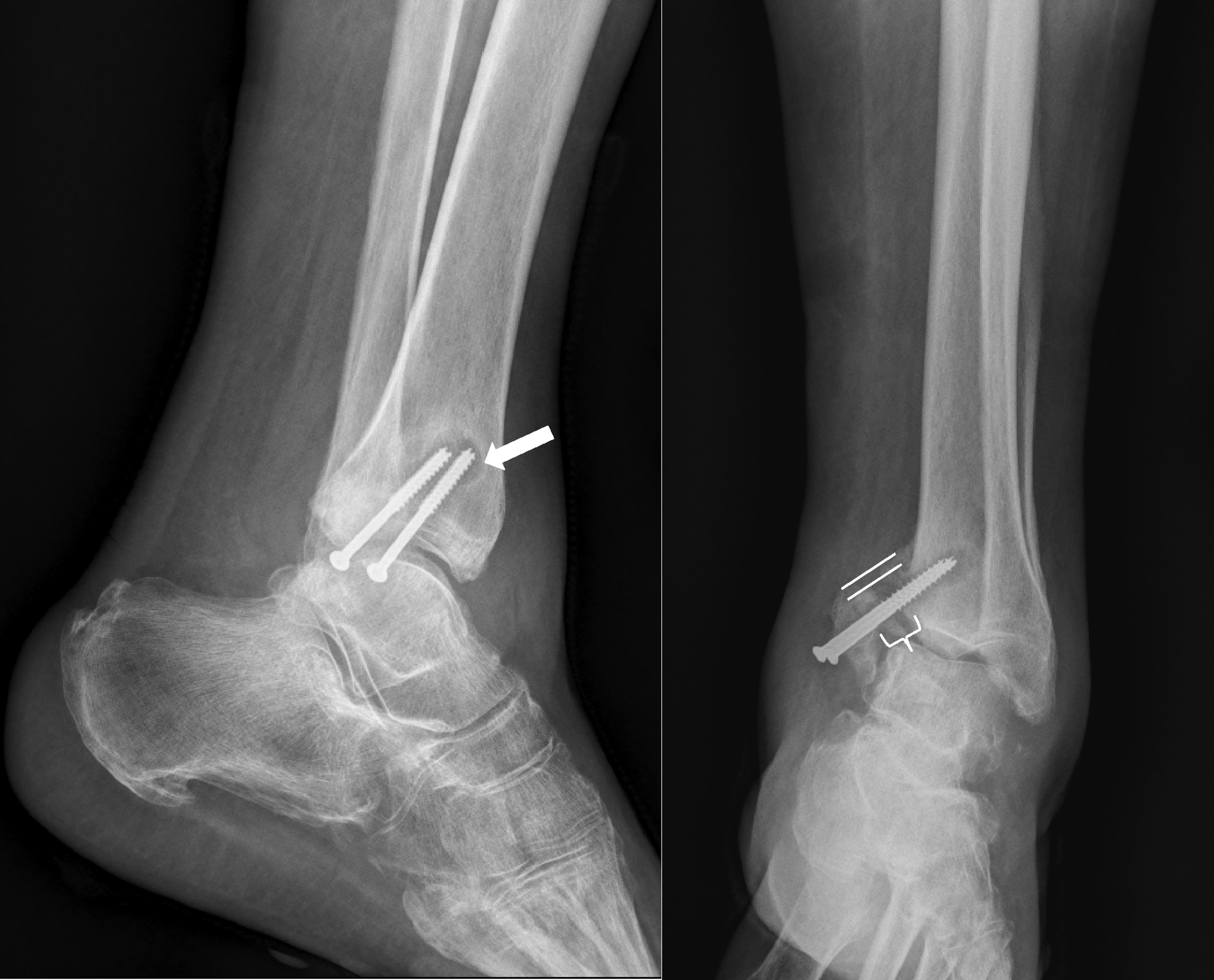underestimating the effects of bone fractures Factors that increase fracture risk include lower bone mass in type 1 diabetes   despite preserved bone density in type 2 diabetes, as well as the effects of  risk  factors taken into account, frax underestimates fracture risk in patients with.