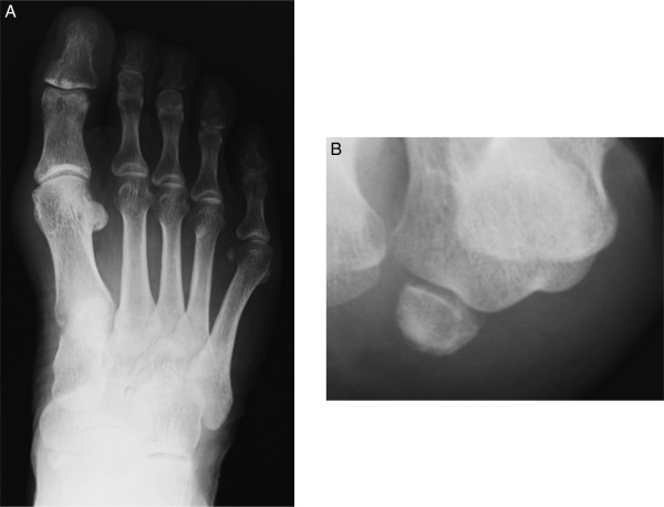 Osteochondroma Of The Tibial Sesamoid A Case Report And