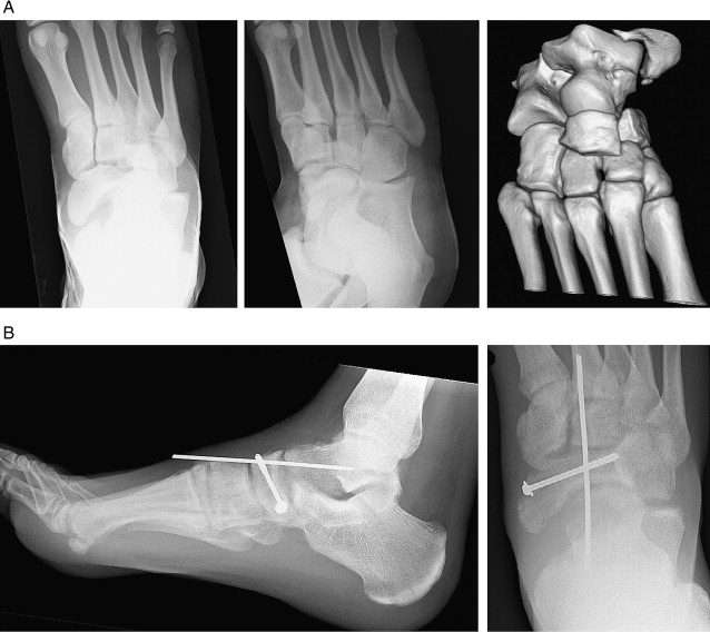 Chopart Joint Injury A Study Of Outcome And Morbidity