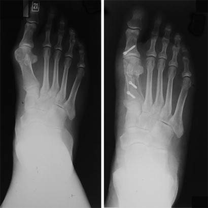 Scarf Akin Osteotomy Correction For Hallux Valgus Short
